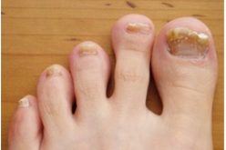 Podiatrist Can Cure Nail Infection And Sports Podiatrist Will Get You Back To Your Activity