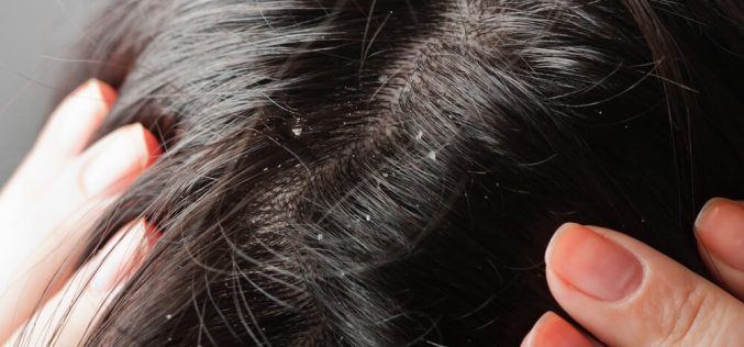 Seven things about dandruff you don't know