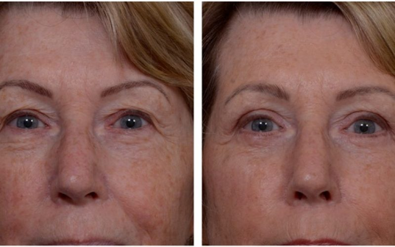 Eyelid Surgery And What You Should Know