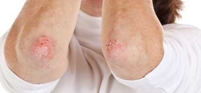 You need not suffer from psoriasis. Consult a homeopath!
