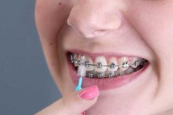 How Do You Maintain Your Braces?